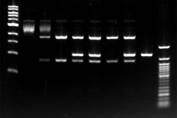 Nucleic Acid Gel Documentation